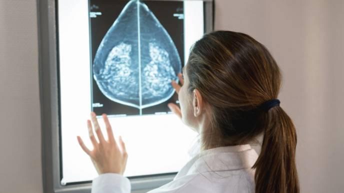 Half of Breast Cancer Survivors Had Delays in Care Due to Coronavirus