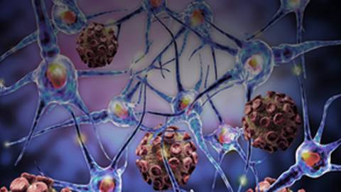 Autoantibody Testing for Connective Tissue Diseases: Primary Care Update