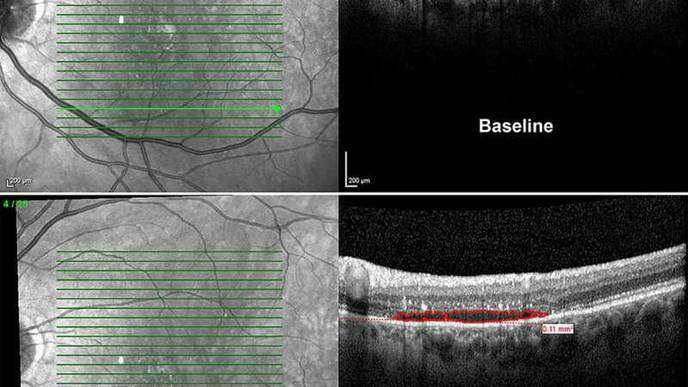 Levodopa May Improve Vision in Patients with Macular Degeneration