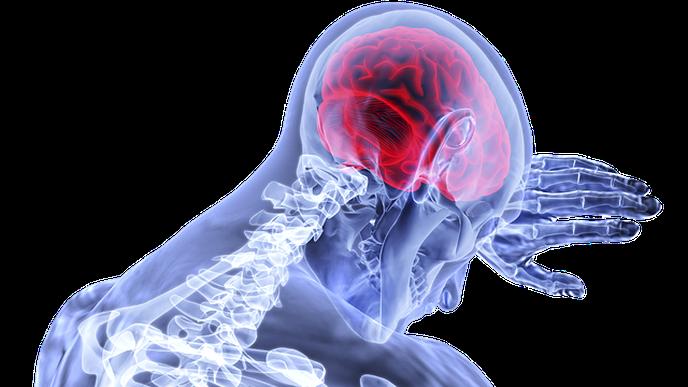 Analysis Finds Multiple Social Disadvantages Magnify Stroke Risk