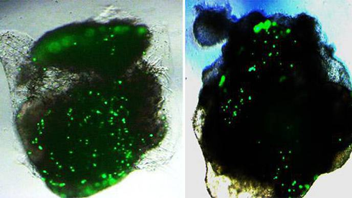 Human Lung & Brain Organoids Respond Differently to SARS-CoV-2 Infection in Lab Tests