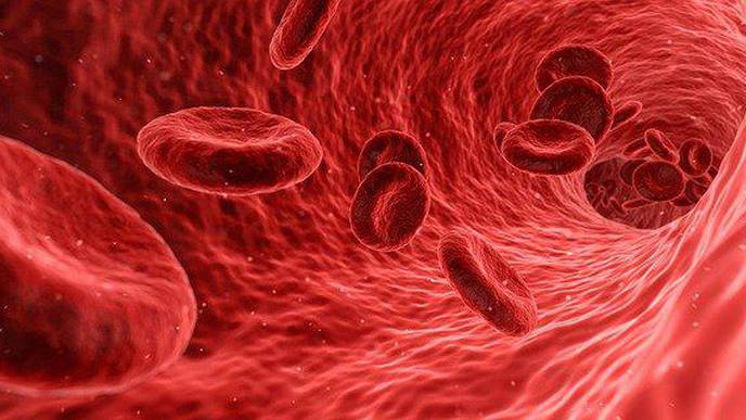 Investigating Mortality & Causes of Death of Patients with Polycythemia Vera