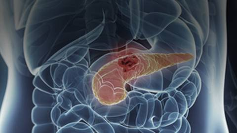 Pancreatic Cancer: The Hunt to Catch a Silent Killer