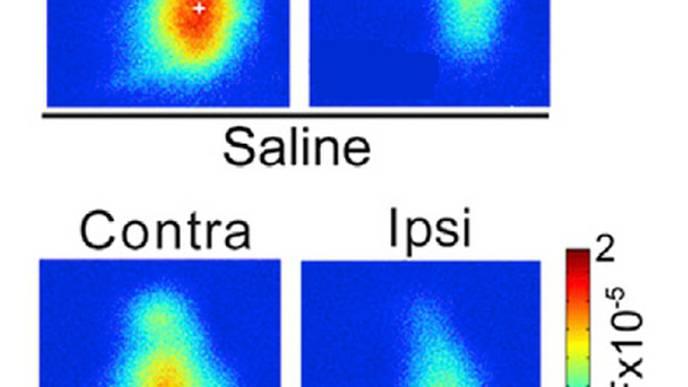 Subanesthetic Ketamine as a Treatment for Lazy Eye