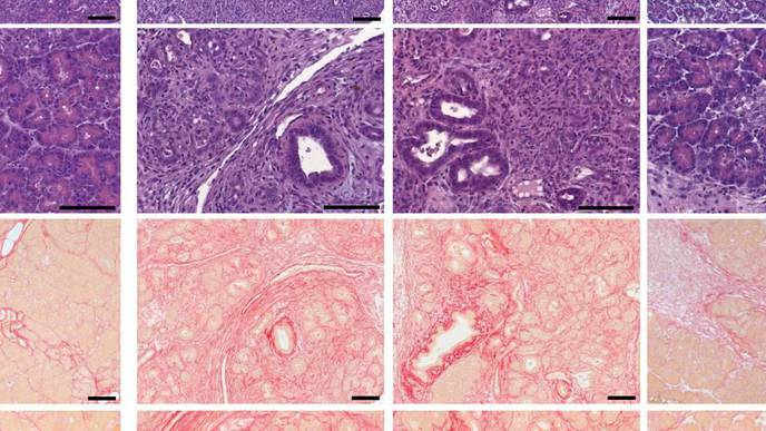 A Disease Trigger for Pancreatitis Has Been Identified