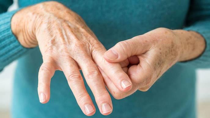 Unifying Terminology for Difficult-to-Treat Rheumatoid Arthritis