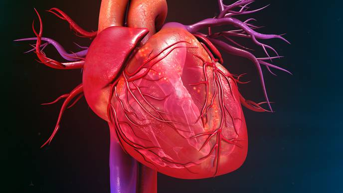Treatment Shows Reduction in Heart Failure After Myocardial Infarction