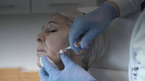 Skin Boosting Technique: A New Approach to Hyaluronic Acid Microinjection