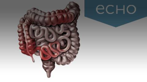 The Evolution of Treatment Options in Crohn's Disease