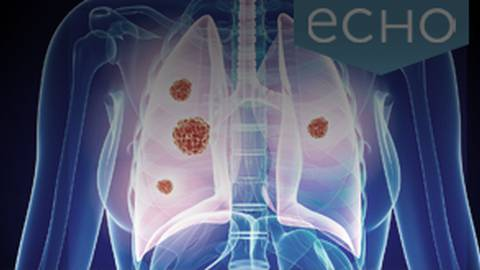 Key Highlights from the Latest Clinical Trials in Lung Cancer