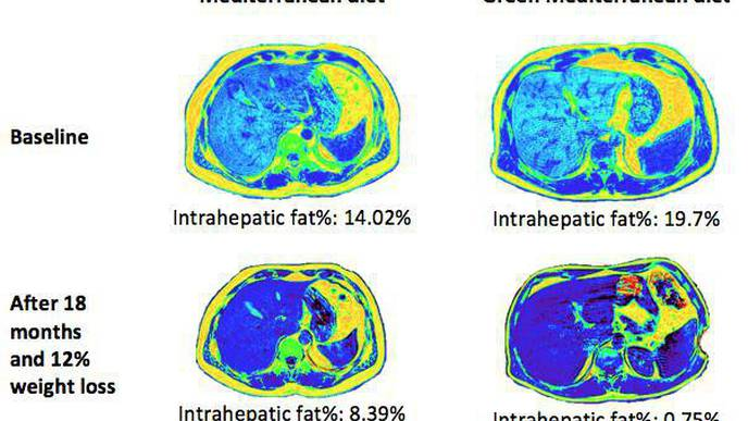 Green Med Diet Cuts Non-Alcoholic Fatty Liver Disease by Half