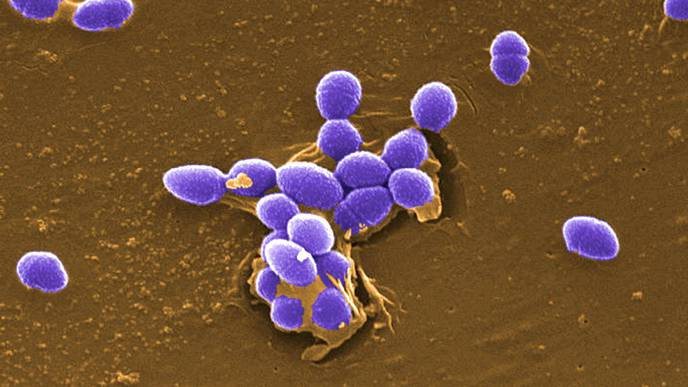 New Insights Into the Virulence Arsenal of a Common Hospital Pathogen