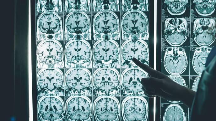 Alzheimer's Disease: How Precision Medicine Could Reverse Cognitive Decline