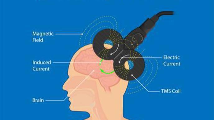 Rewiring Stroke Survivors Brains Could Alleviate Depression