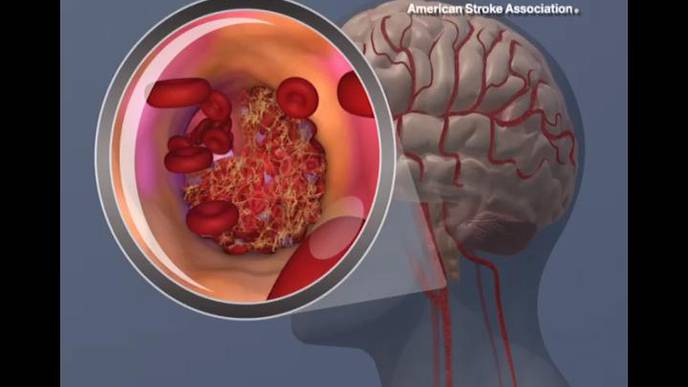 Risk of Second Stroke Can Be Reduced with Prevention Efforts Based on Cause of First Stroke