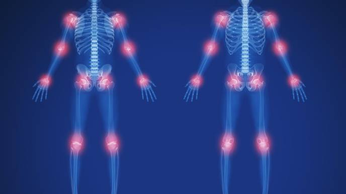 RA Predictors ID'd in Undifferentiated Large Joint Arthritis