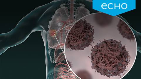 Keeping Pace with Immunotherapy Advances in Non-Small Cell Lung Cancer: Global Lessons