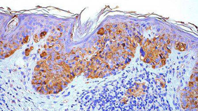 Researchers ID New Treatment Target for Melanoma