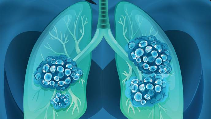 Could Lung Cancer Cases Be Mistaken for COVID-19?
