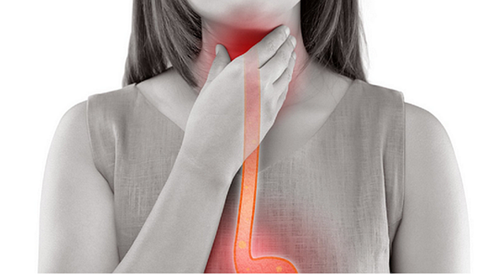 Study Shows Rising Incidence of Esophageal Adenocarcinoma in Younger Adults