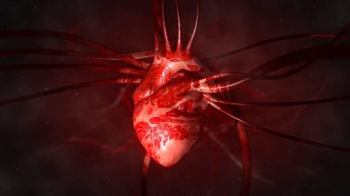 Study: COVID-19 Patients Rarely Survive Cardiac Arrest
