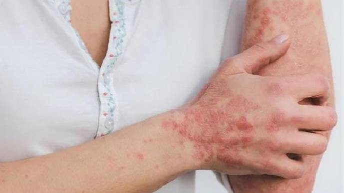 Herpes, Hair Fall, Nail Issues: Doctors Caution on Post-COVID Dermatological Problems