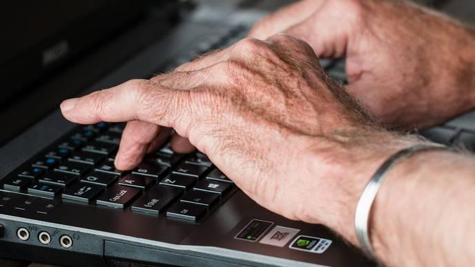 Arthritis Drugs Effective in Treating Dupuytren's Disease