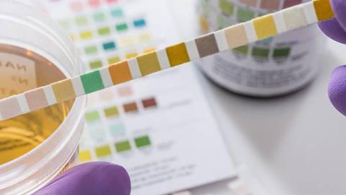 Unusual Immune Response in Bladder Appears to Drive Repeat UTIs