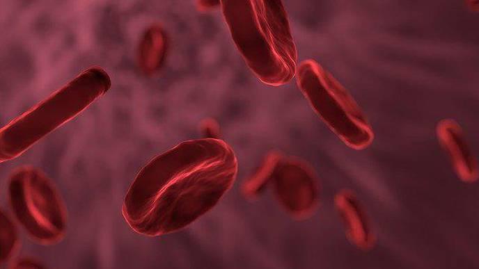 Targeting Plasmacytoid Dendritic Cells Can Reduce Cutaneous Lupus Symptoms