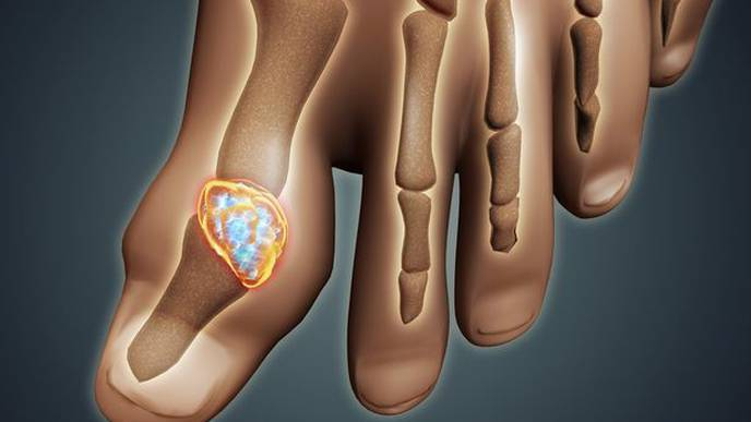 Gout Cases Are Rising Worldwide
