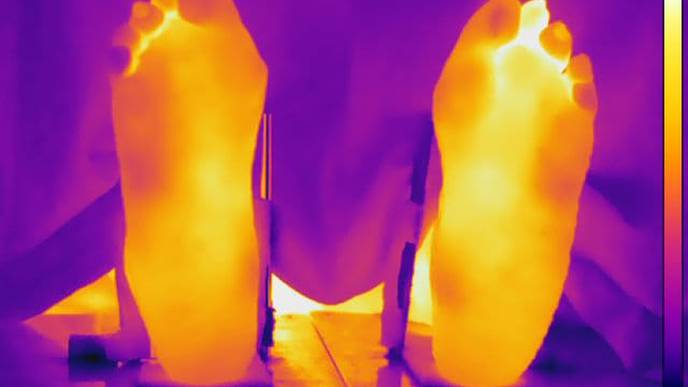 Higher Body Temperatures Still a Factor in Patients in Remission from Rheumatoid Arthritis