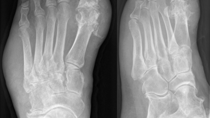 Amputations of Body Parts: Combination of Diabetes & Gout Significantly Increases Risk