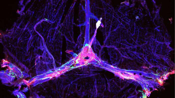 Brain's Waste Removal System May Offer Path to Better Outcomes in Alzheimer's Therapy