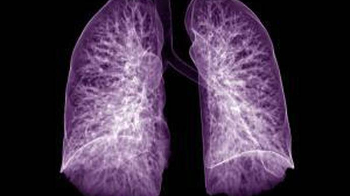 Lung Complications Noted in Half of COVID-19 Surgical Patients