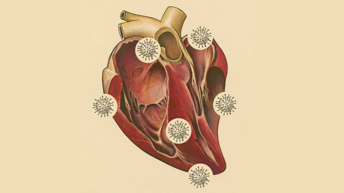What Do These Autopsies Reveal About COVID-19 & Heart Damage?